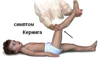 meningit4.jpg